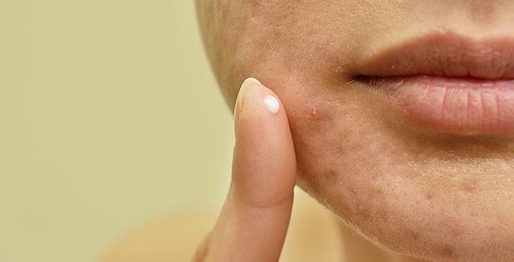 Tudo o que você precisa saber sobre acne